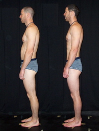 Rolfing SI Before and After Photo